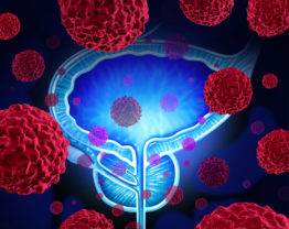 Tratamento para câncer de próstata